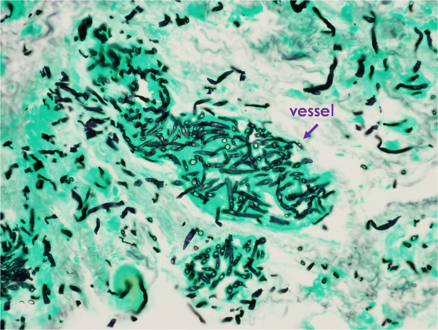 Figure 10. GMS stain demonstrating angioinvasion