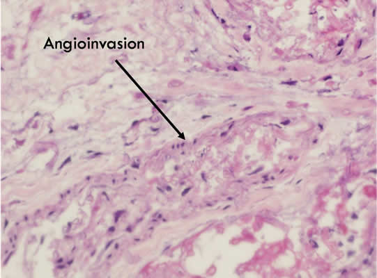 Figure 9. H and E blood vessels appear thrombosed, and angioinvasion by hyphae is noted