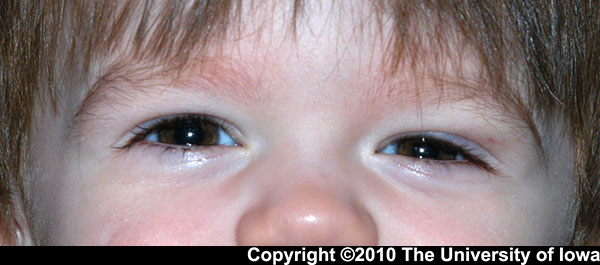 Figure 1. superotemporal swelling over the left upper eyelid
