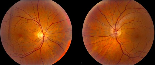 Fundus Photos showing optic disc edema