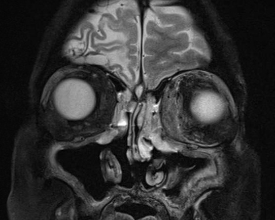 MRI of brain with gadolinium
