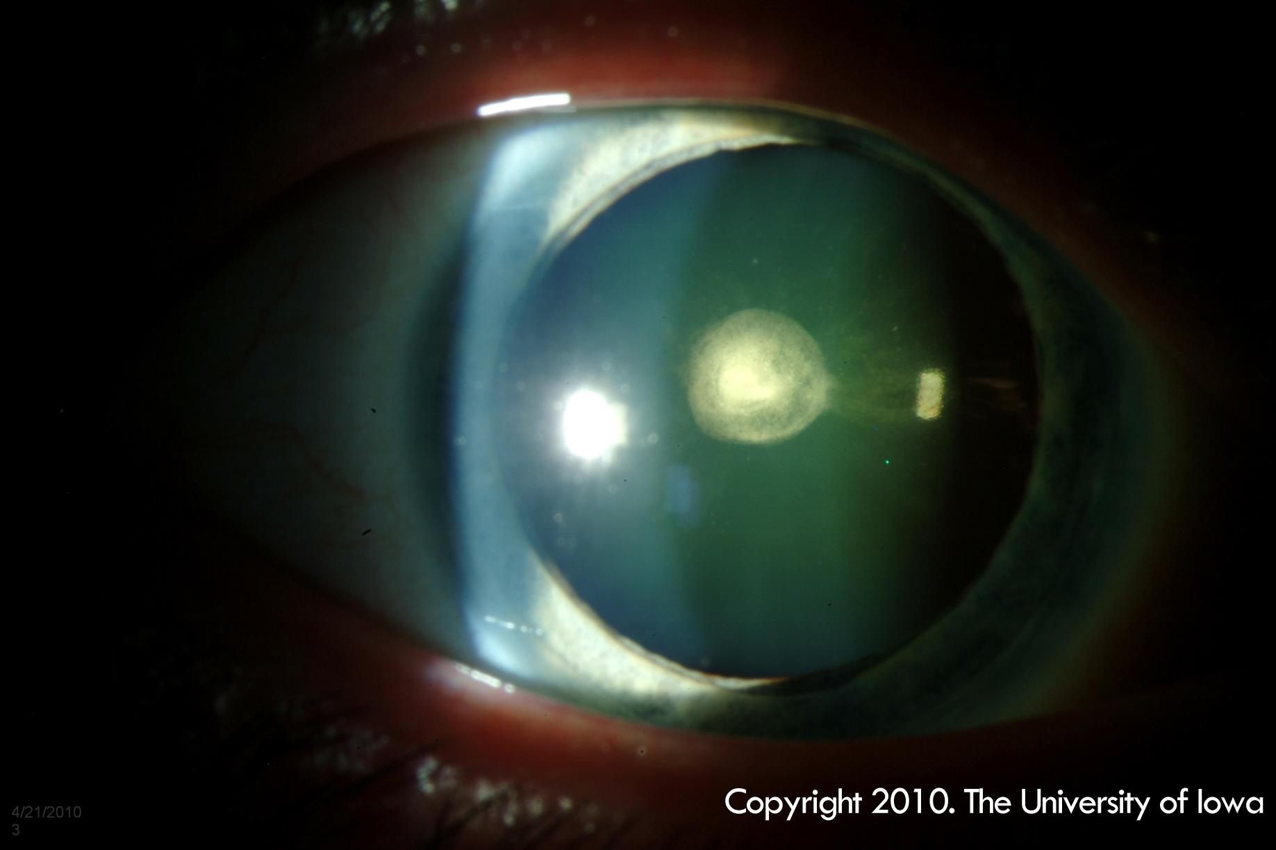 posterior polar cataract  eyerounds org