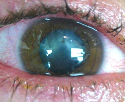 Intraocular Foreign Body, caption above for details)