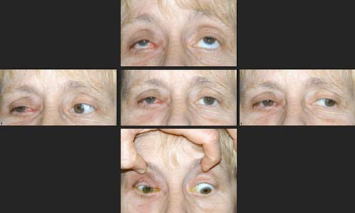 Figure 7.? Post-radiation external photographs demonstrating ptosis and limited extraocular motility of the right eye.