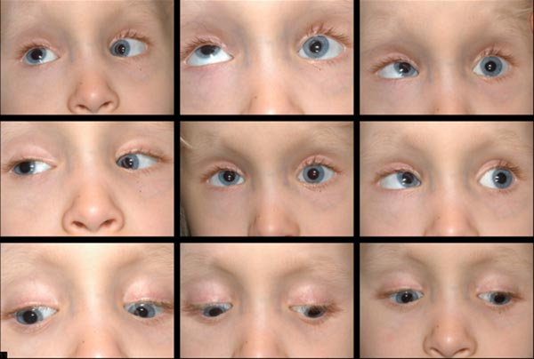 Figure 4: Pre-operative photos demonstrating variable residual esotropia of 16 -20delta and left hypotropia of 16-18delta. Motility exam is notable for elevation deficit OS consistent with a monocular elevation deficiency. The left lower eyelid appears to have an accentuated lower eyelid, or a Scott Sign, which is suggestive of a tight inferior rectus and commonly seen in monocular elevation deficiency (Scott, 1977).