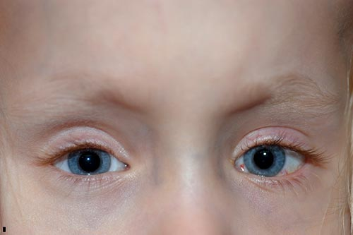 Figure 5: Post-operative photo showing a small residual esotropia and left hypotropia (~7delta).