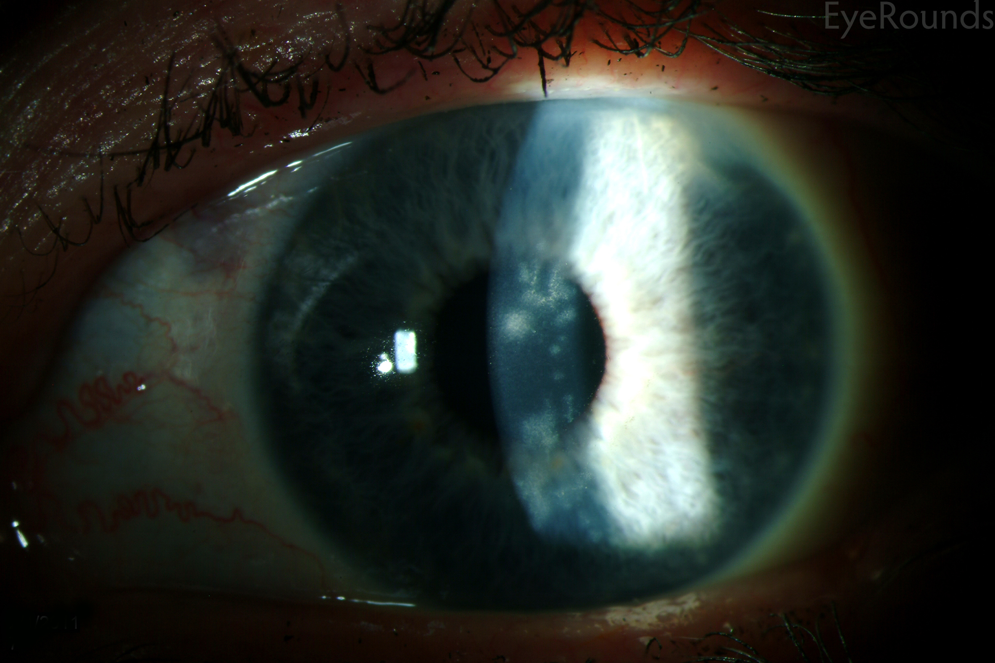 Herpetic keratitis: causes and treatment 24