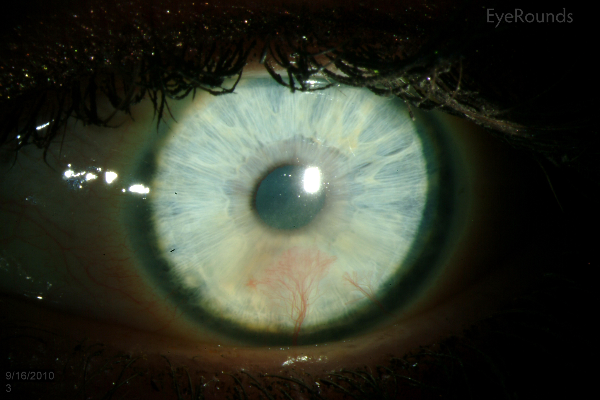 Herpetic keratitis: causes and treatment 96