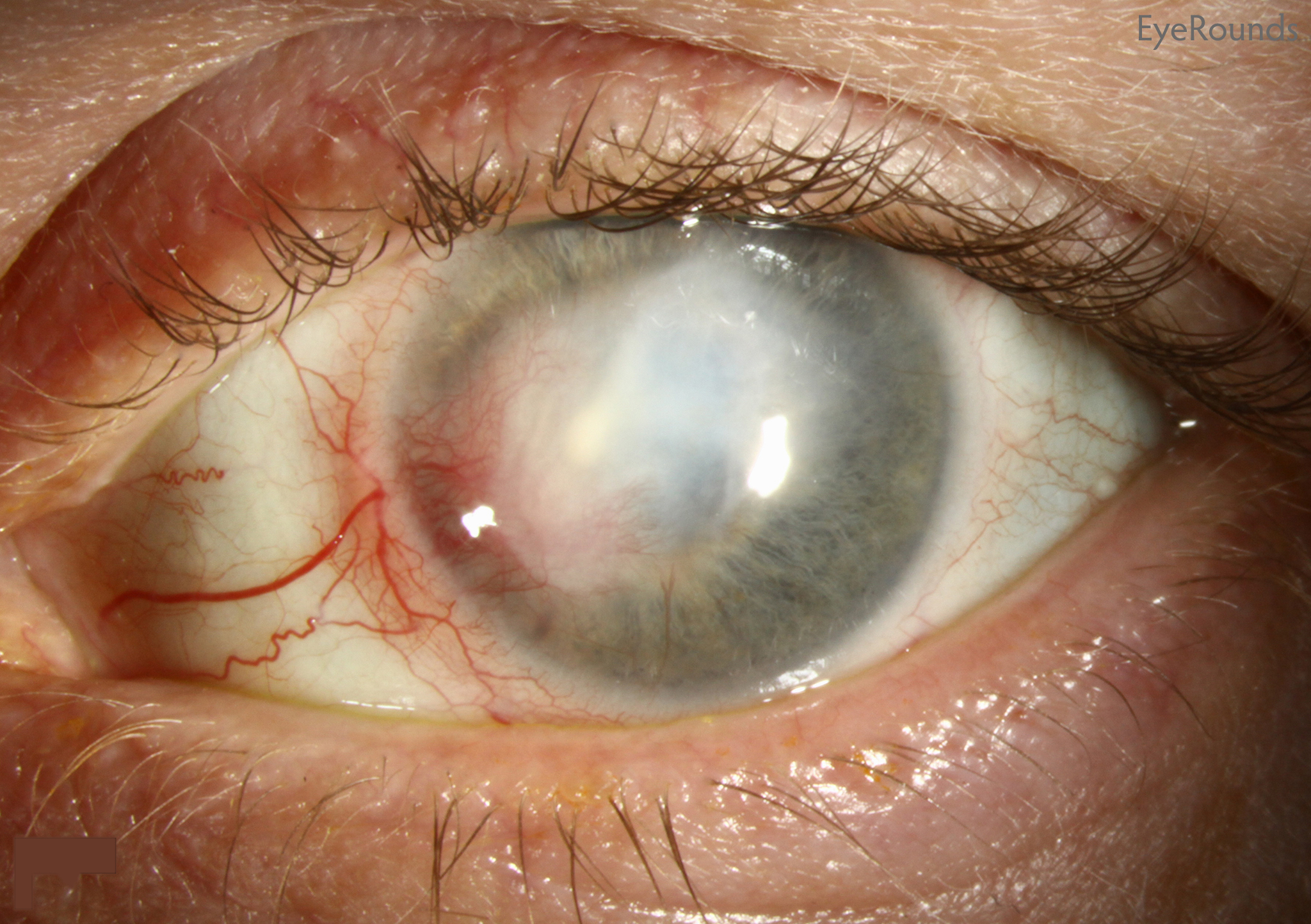 Herpetic keratitis: causes and treatment 81
