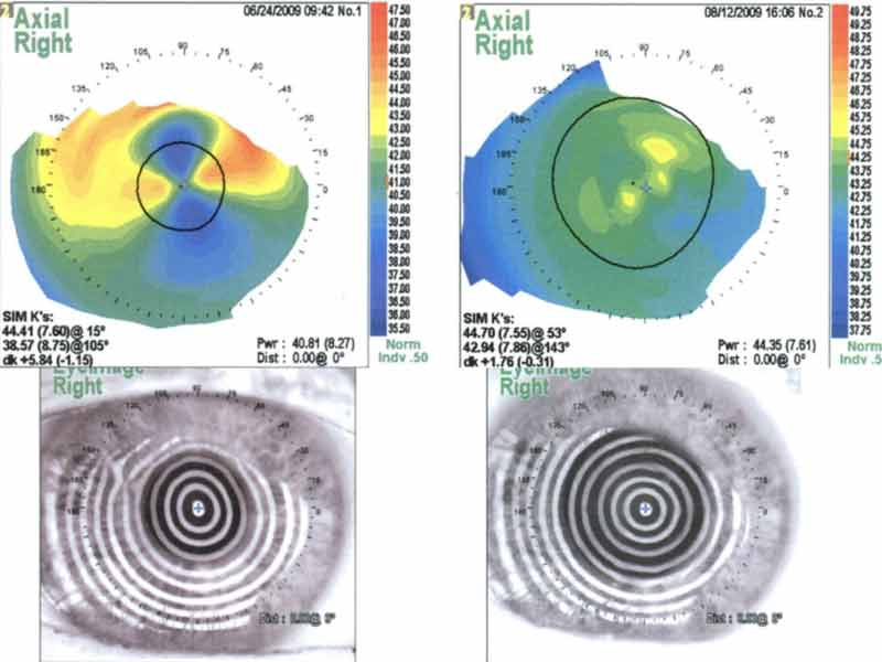 Right eye topography after superficial keratectomy. The overall corneal curvature is reduced with substantial reduction of both regular and irregular astigmatism