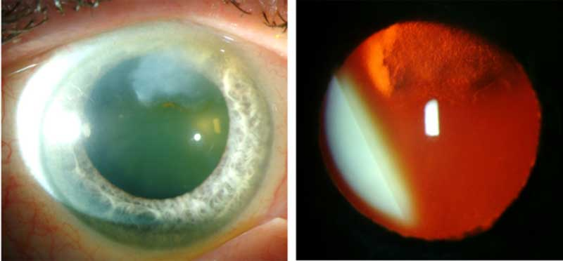 Slit lamp photo of the left eye of another patient with a superior Salzmann's nodule.