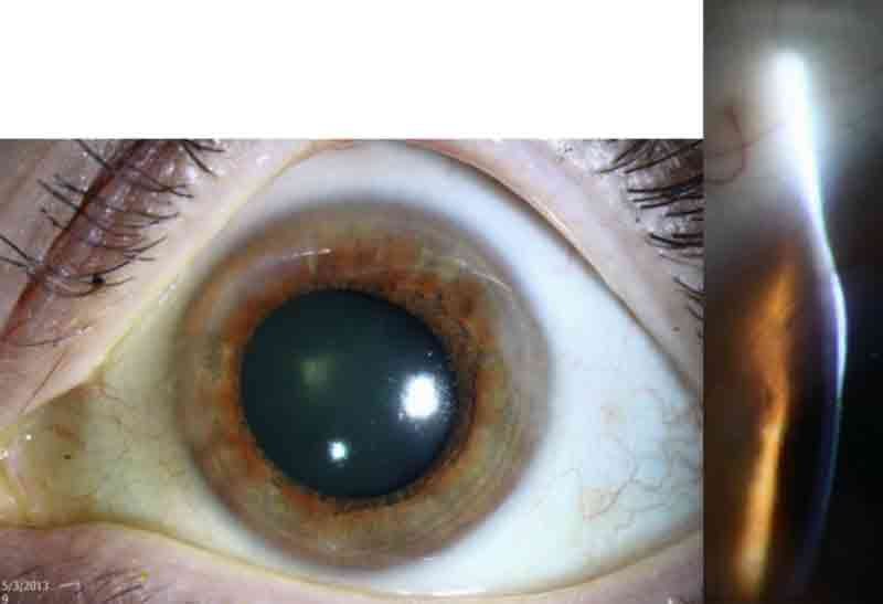 Slit lamp photo of the left eye of another patient with Salzmann's nodular corneal degeneration