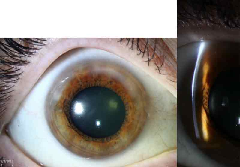 Slit lamp photo of the right eye. Salzmann's nodules are annular in the superior periphery.
