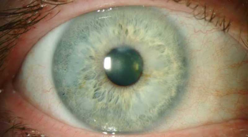 Slit lamp photo of the right eye of another patient with Salzmann's nodular corneal degeneration. Nodules are annular in the mid-periphery.