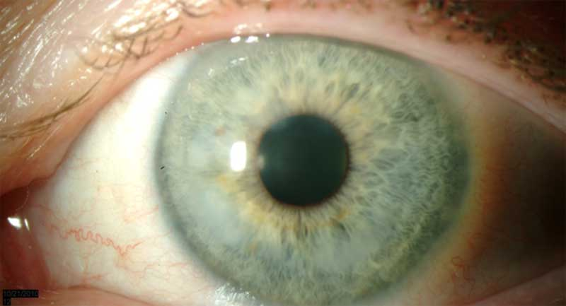 Figure 8b: Slit lamp photo of the left eye of another patient with Salzmann's nodular corneal degeneration. Nodules are annular in the interior mid-periphery.