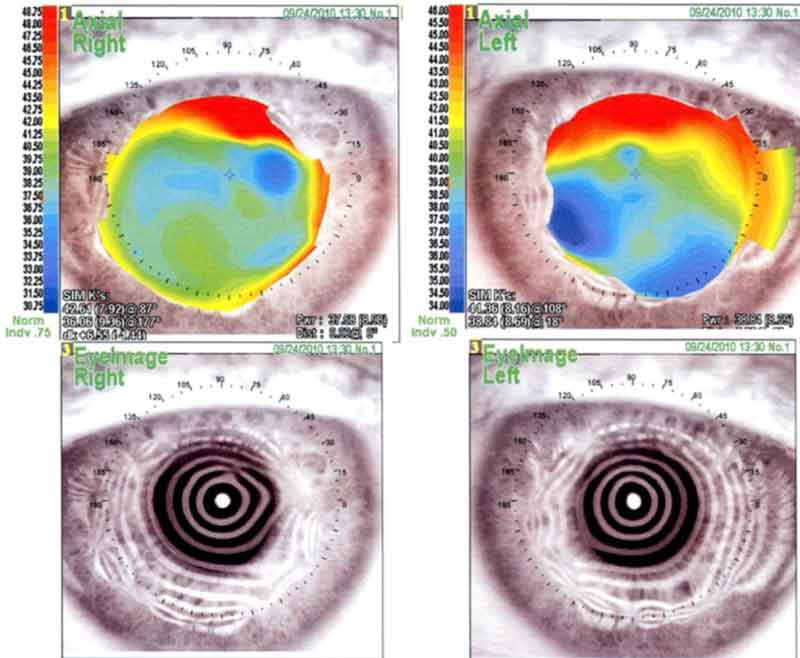 Corneal topography. The right eye shows a very irregular astigmatism with superior and nasal steepening. Placido image shows irregular mires in the mid-periphery in all directions. The left eye has a very irregular astigmatism with marked superior and temporal steepening. The placido image has irregular mires with some nasal steepening.