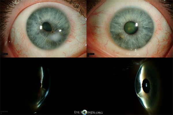 Bilateral corneal opacification