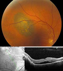 Choroidal malignant melanoma with orange pigment