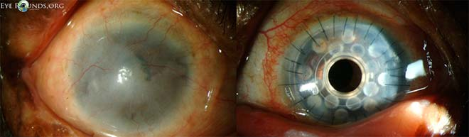 Outcome of Boston KPro type I for corneal conjunctivalization. This patient attained 20/25 vision following surgery