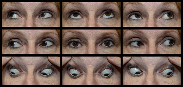 Figure 2: The patient had a very small angle, comitant left hypertropia (LHT). She adopted a compensatory right head tilt (not shown) and there was 5 degrees of excyclotorsion OD and 7 degrees of incyclotorsion OS with double Maddox rod (DMR) testing (see Figure 3). The alignment did not improve with earth neutral positioning.