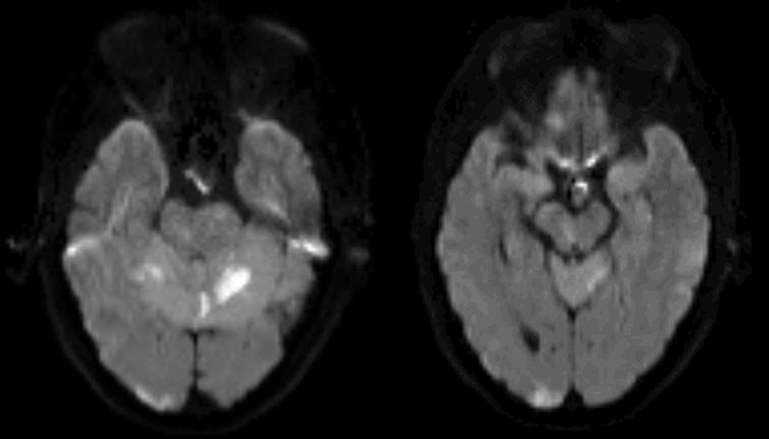 MRI axial diffusion-weighted imaging (DWI) showing hyperintensity (diffusion restriction) in the cerebellum, right occipital lobe, and right paramedian midbrain.