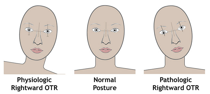 Left: A physiologic ocular tilt reaction (OTR) in response to a left body tilt in the roll plane – there is a compensatory right head tilt with downward rotation and excyclotorsion of the right eye and upward rotation and incyclotorsion of the left eye. Right: A pathologic OTR will have the same changes in head posture, eye position and rotation as the physiologic OTR in the absence of a change in body position in the roll plane to stimulate it. [adapted from 1]