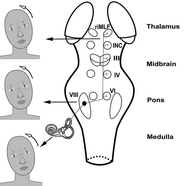 A schematic showing the pathway of vestibular input to the vestibulo-ocular reflex (VOR) (see Neuroanatomy and Localization section in the article for more detailed information).