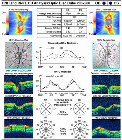 Cirrus Optical Coherence Tomography showed no optic nerve edema and normal retinal nerve fiber layer.