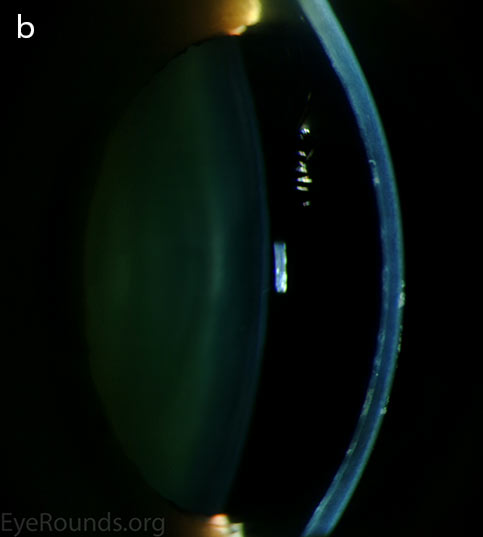Diffuse inner corneal opacities