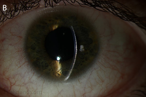 slit lamp, Punctate, needle-shaped crystals diffusely present throughout the corneal surface