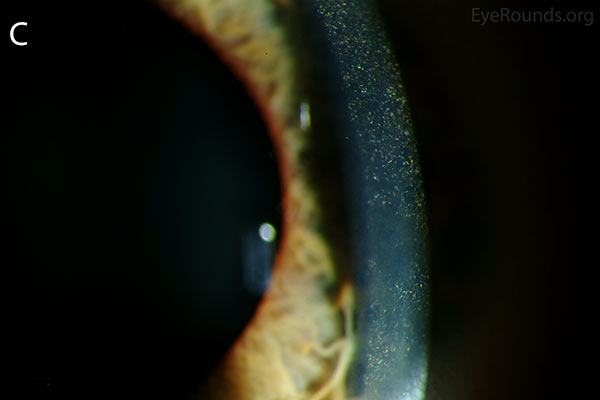 slit lamp closer, Punctate, needle-shaped crystals diffusely present throughout the corneal surface