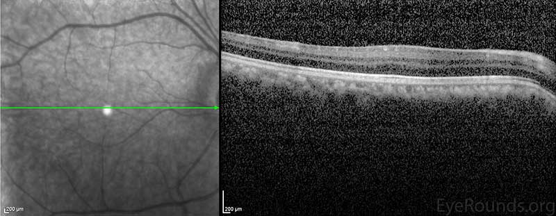 Macular OCT revealed an absence of the normal foveal depression, consistent with foveal hypoplasia