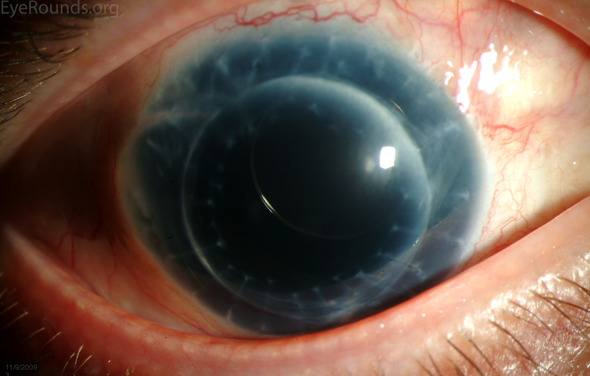 morcher intraocular lens and penetrating keratoplasty  pkp