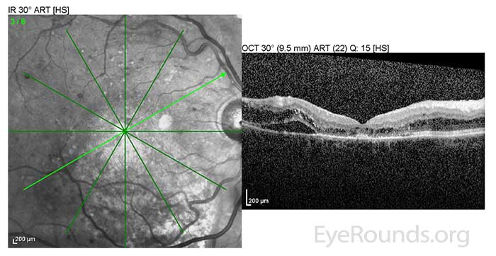 OD: Resolving macular detachment and surrounding CME.