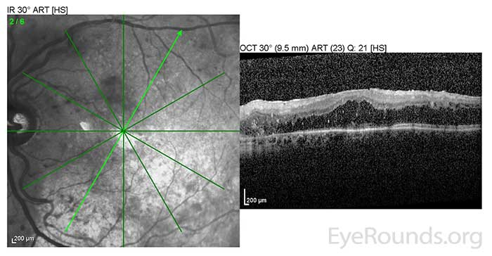 OS: Resolved neurosensory retinal detachment with diffuse overlying CME.