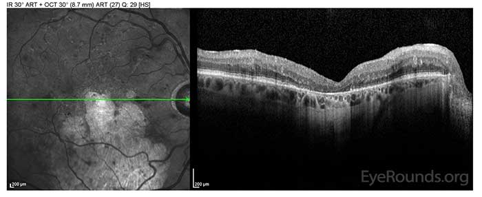 OD: Outer retinal atrophy centrally and inferiorly with mild CME in the superior macula.