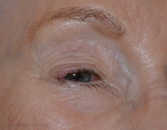 Another example of Merkel cell carcinoma presenting as a flesh-colored papule arising from the superotemporal portion of the upper eyelid.