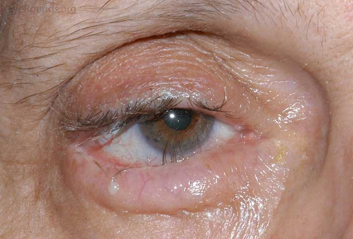 inward rotation of the lower eyelid margin with misdirected eyelashes abrading the cornea centrally