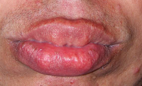 Full appearing lips with thickened mucosa