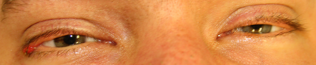 Large, erythematous upper eyelid lesion on the lateral canthus of the right eye with a smaller upper eyelid margin lesion medial to the larger lesion. Fullness of both upper eyelids with a yellow lower eyelid lesion near the puncta with scalloping of the medial lower eyelid on the left.