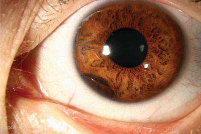 Top left:  On slit lamp examination, a dark brown, pigmented lesion in the peripheral iris is seen extending from 6:30 to 8:00; there is no neovascularization of the iris and the pupil is round.