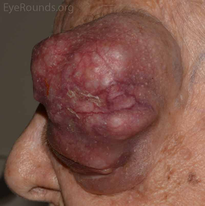 External photos demonstrates a large 9cm x 8cm mass extending from the supraorbital area with inferonasal displacement of the globe. The lesion is irregular and the overlying skin is erythematous. There is limited view of the left globe, which is displaced inferonasally.