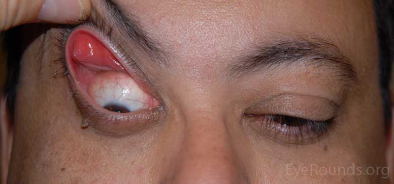 OD: lateral ptosis, significant eversion of the upper eyelid with minimal upward traction; significant lower eyelid laxity