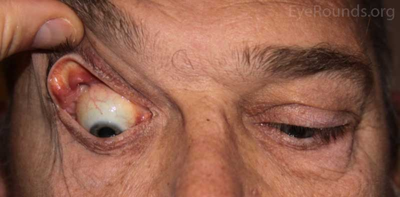 OD: Ptosis, significant eversion with gentle traction on the upper eyelid