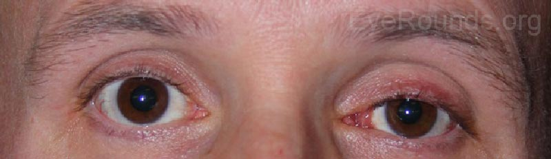External photo showing left lid ptosis and left eye caruncular lesion.
