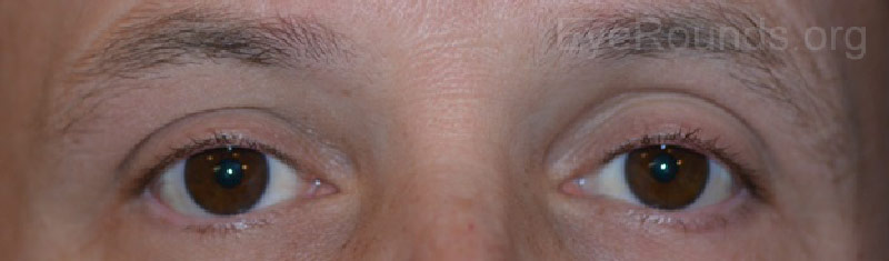 External photos showing resolution of ptosis four months following radiation treatment to the right eye lesion and eleven months after completing radiation to the left eye lesion.