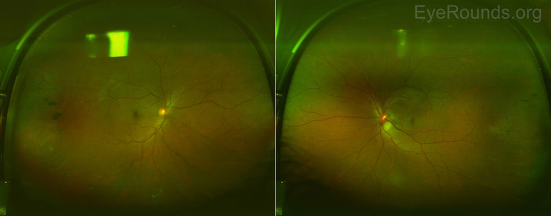 Figure 2: Optos color fundus photography. The media appeared slightly hazy in both eyes due to mild vitritis. The right optic nerve was healthy with no disc edema. There was mild disc edema of the left optic nerve and a large (~2000mm) inferotemporal retinal granuloma with surrounding subretinal fluid tracking into the macula.  There were snowballs present inferiorly OU, which were difficult to appreciate in these images.  There were chorioretinal scars with pigment temporally and inferiorly OU.