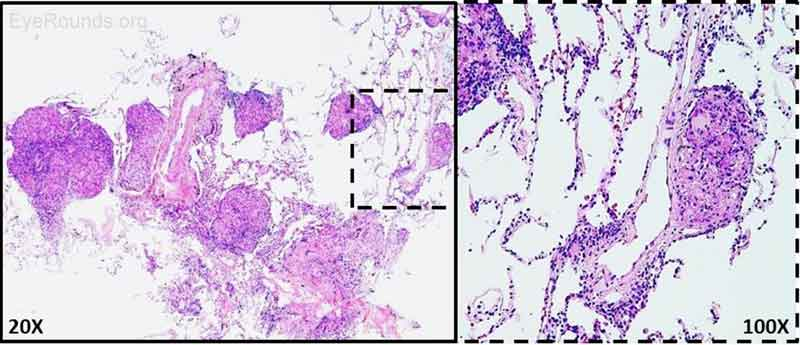 Figure 7: Right transbronchial biopsy. H&E staining of biopsied lung nodules revealed non-necrotizing granulomas. AFB and GMS stains were negative for microorganisms.