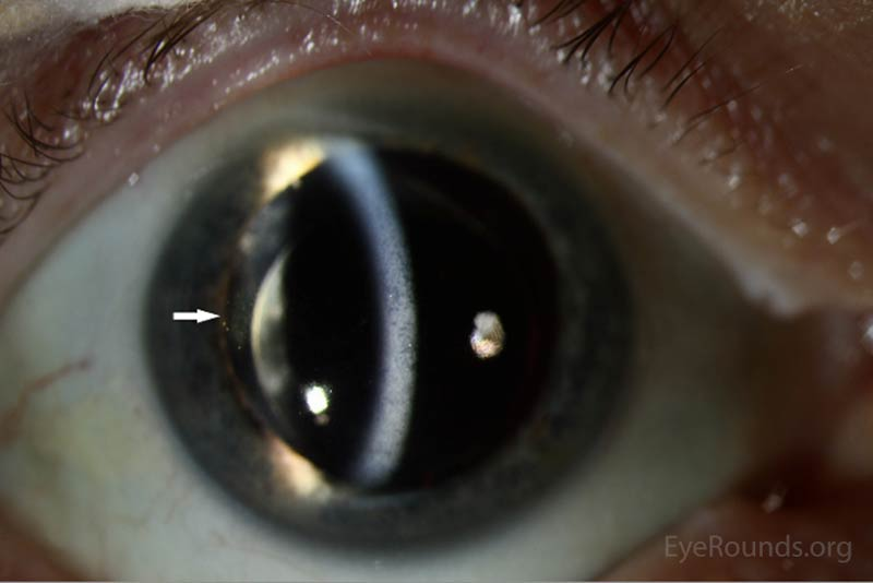 Figure 2: Slit Lamp photos of both eyes reveal pigmented keratitic precipitates (arrows)