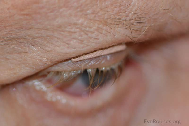 Lateral view of right eyelid with BlinkEze® eyelid weight in place.